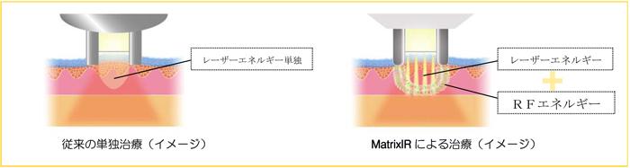 レーザーエネルギー&高周波(RF)エネルギーのシナジー効果
