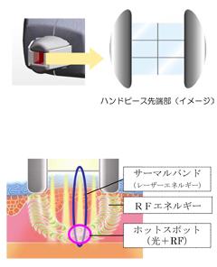 高いエネルギー密度による強力アプローチ